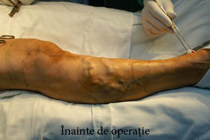 după intervenția chirurgicală varicoasă laser dawn cream cu recenzii varicose vene